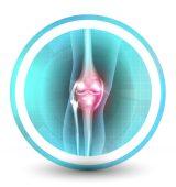 knee x ray