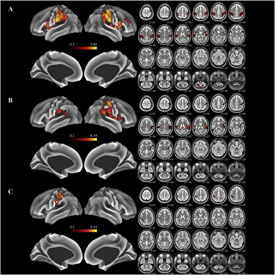 Whole-brain functional MRI analysis