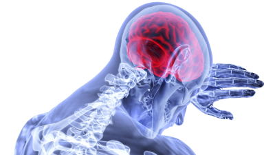 concept art of a concussion